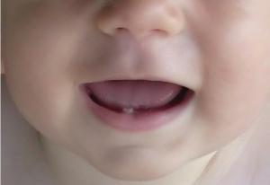 Помочь когда режутся зубы у ребенка