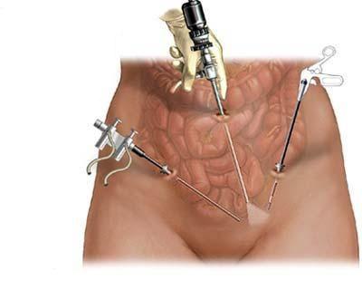 Особенности операции по удалению миомы матки