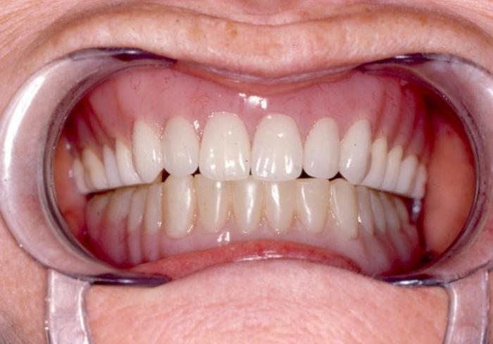 Зубной порошок отбеливает зубы отзывы