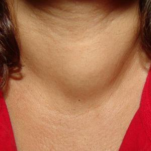признаки проблемы с щитовидкой