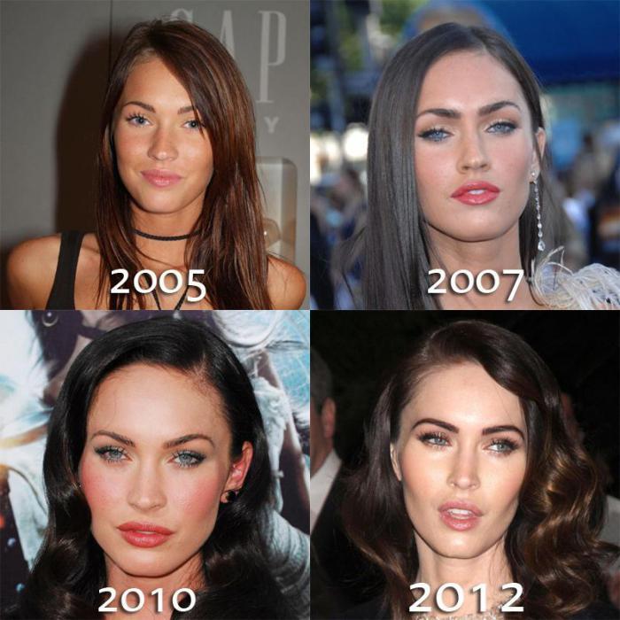 почему после лазерной эпиляции растут волосы