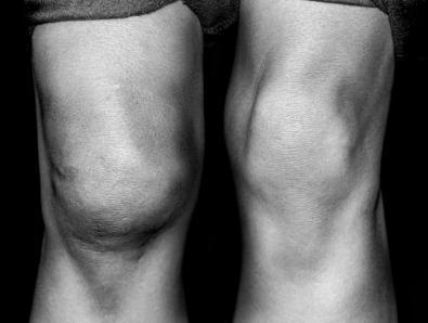 Боль в левом тазобедренном суставе лечение