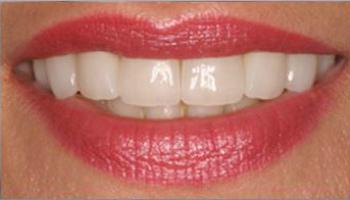 зуб под виниром