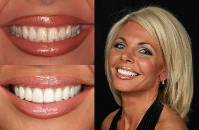 накладки на зубы виниры отзывы цены