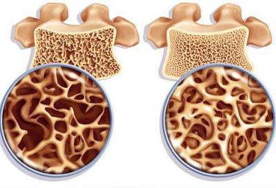 остеопороз что это такое