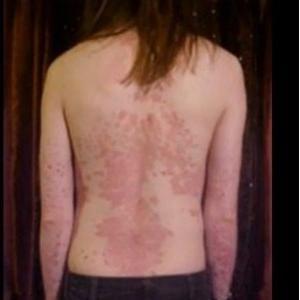 как проявляется лекарственная аллергия у взрослых фото