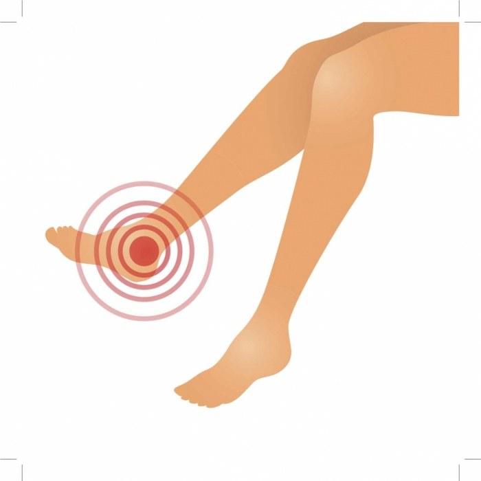 Красные пятна на ногах при варикозе лечение