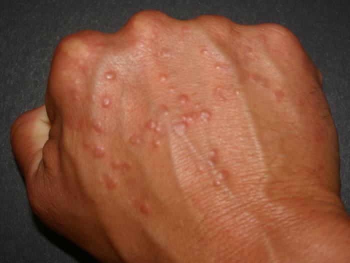 аллергия мелкие прыщики на теле