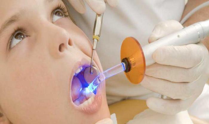 световая пломба на зуб