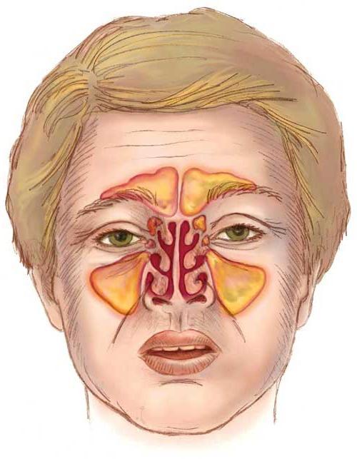болезнь синусит Синусит — Википедия