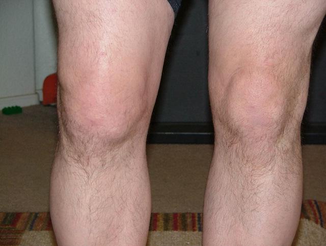 таблетки для лечения суставов колена