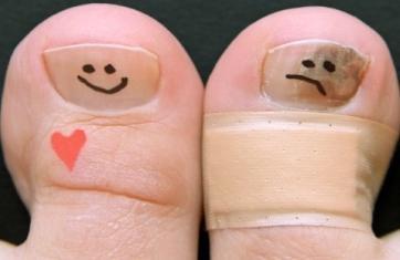 Может ли экзодерил вылечить грибок ногтей на ногах