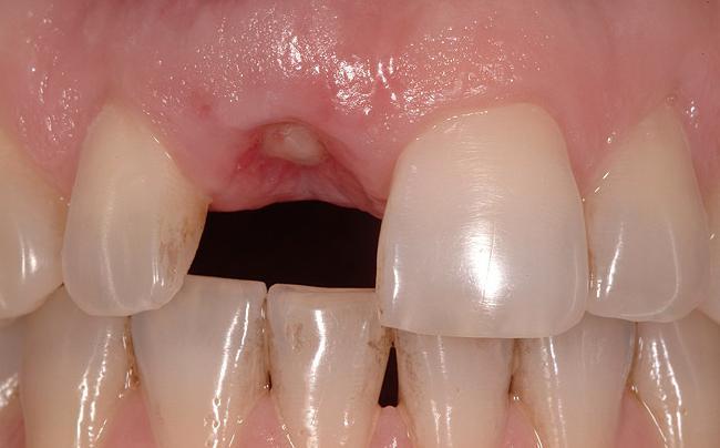 как быстро заживает рана при удалении молочных зубов у детей
