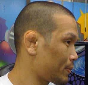 поломанные уши борцов фото