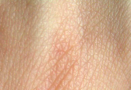 Орган осязания кожа