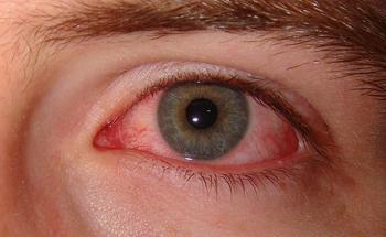 Капли от красных глаз