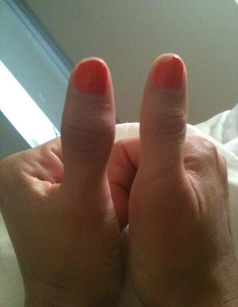 Большой палец на руке опух