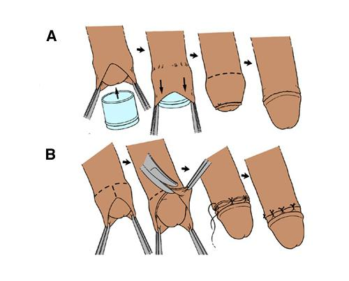 Обрезание во время секса