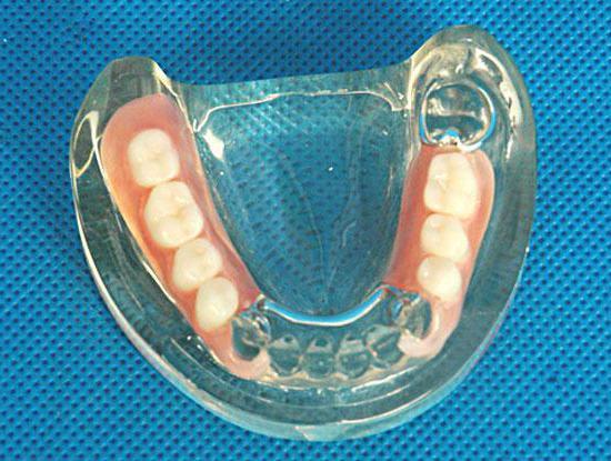 Акрилові зубні протези відгуки і ціни