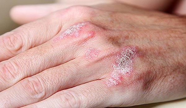 лечение холодовой аллергии народными средствами