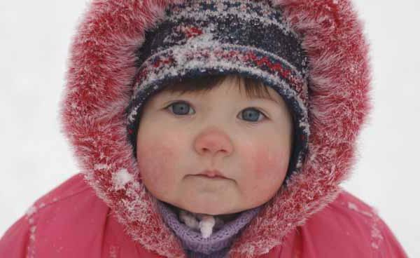 лечение холодовой аллергии на руках