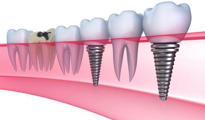 Имплантология зубов плюсы и минусы