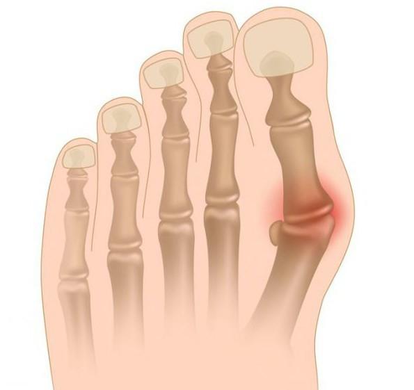 ушибла палец на ноге