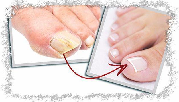 Грибок ногтей какой врач нужен 6