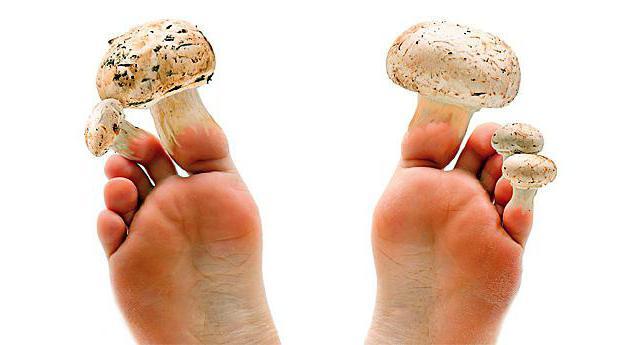 Грибок ногтей какой врач нужен 3
