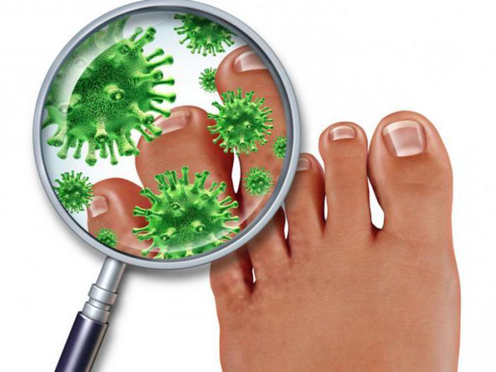 какой врач лечит грибок ногтей на ногах правильное
