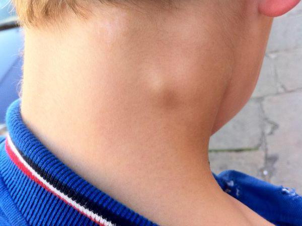 что первой прощупываются мелкие шарики по всей шее Norveg