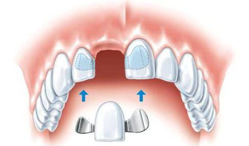 замена зуба цена