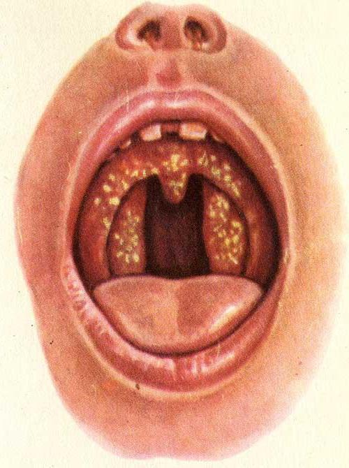 волдыри на языке ближе к горлу