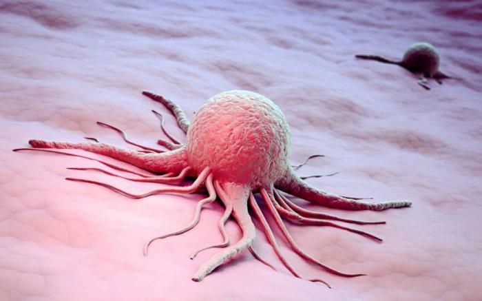рак соска груди
