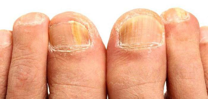 Мази и таблетки от грибка между пальцами ног