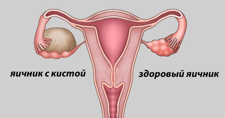endometrioid ovarian cyst