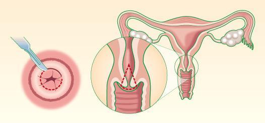 Как быстро размягчить шейку матки перед родами?