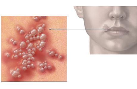 аллергия на мед препараты