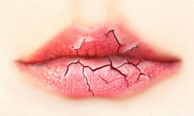 Болезнь верхней губы