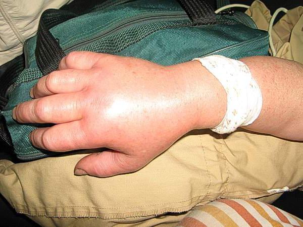 Последствия укуса гадюки для человека
