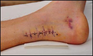фото швы после операции