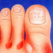 как лечить грибок на ногах,