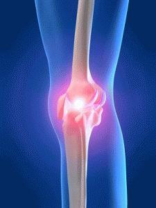 Что такое деформированный артроз коленного сустава?