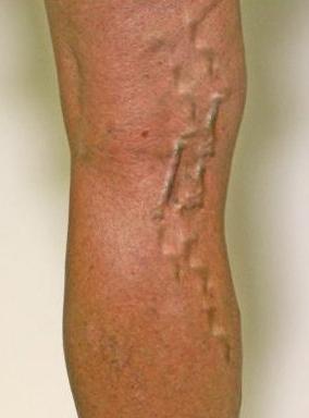 От чего выпирают вены на икрах ног