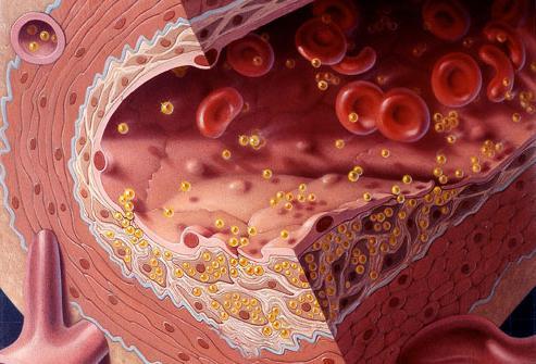 холестерин лпнп повышен а лпвп в норме