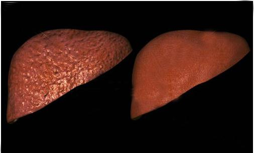 Носитель вируса гепатита в что это такое