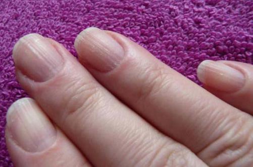 Причины. Бороздки на ногтях