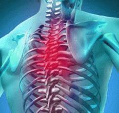 Шейный и грудной остеохондроз симптомы и лечение
