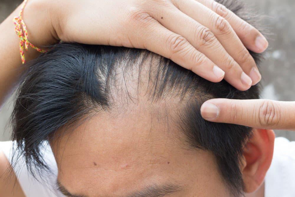 Сколько в день выпадает волос: норма и отклонения