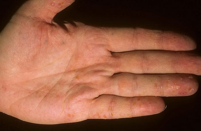 Маленькие пупырышки на руках